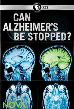 Can Alzheimer's be Stopped.